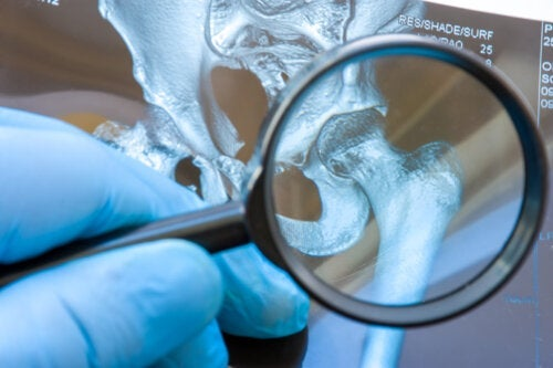 La dysplasie de la hanche chez les bébés : qu'est-ce que c'est et comment est-elle corrigée ?