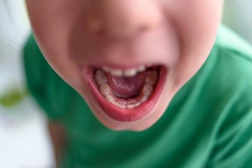 Double rangée de dents chez les enfants: que faire?