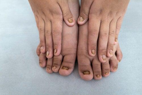 Changements de couleur des ongles des enfants: Quelles sont les causes?